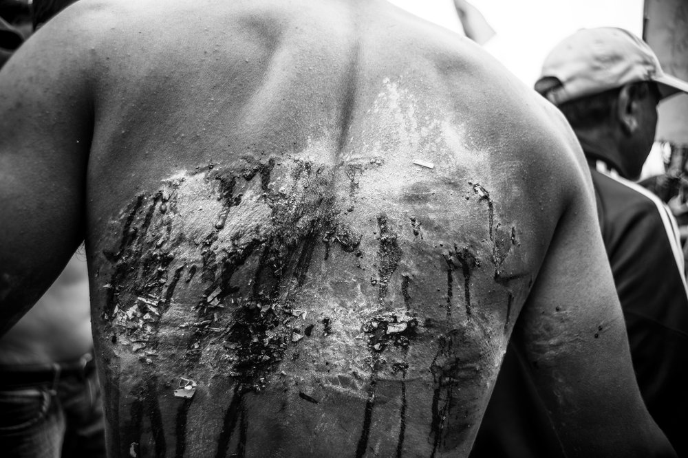 The blood-soaked back of a Gorkhaland supporter. Stuck on his back are thousands of pieces of tube light.