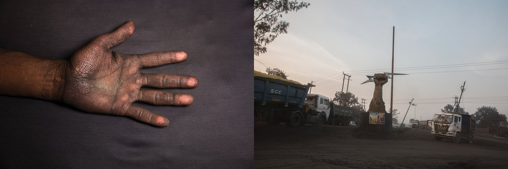 LEFT: VIMLESH SAWHNEY's HAND, CHILKADAND  RIGHT: COMPANY LOGO OF A FIST, COAL TRUCK DEPOT OF   NCL JAYANT COAL MINES