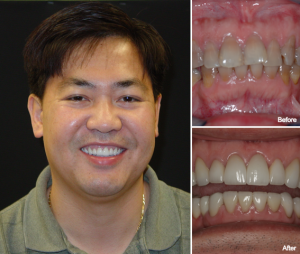 Truong_Patient_Main_Tuong_T-300x254.png