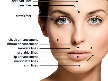 DERMAL FILLERS - Dermal fillers, such as Juvederm, Restylane, Belotero Balance and Radiesse are safe, non allergenic substances that are injected just below the surface of the skin to fill in lines, wrinkles and scars. Unlike Botox, they don't relax facial muscle, but instead work to fill facial lines and plum the skin.What to expect during treatment. Dermal fillers are non surgical treatments that require little to no recovery downtime.Injection usually takes only a few moments per site. The process of injecting, massaging and evaluating the result is performed and additional filler is used as needed.You may experience minor discomfort, tenderness redness, swelling, bruising, or firmness at the injection site. Studies have shown that these symptoms are usually mild to moderate in nature and clear up on their own in 7 days or fewer.If needed, you can apply ice pack to the injection site.