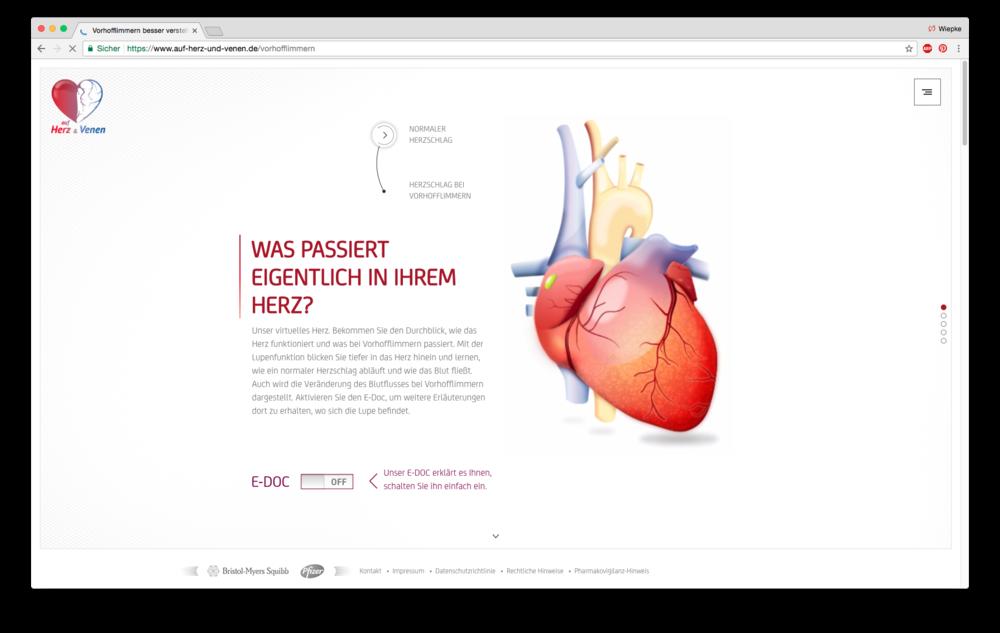 Gemütlich Blutfluss Durch Das Herz Bilder - Menschliche Anatomie ...