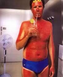 sun burn.jpg