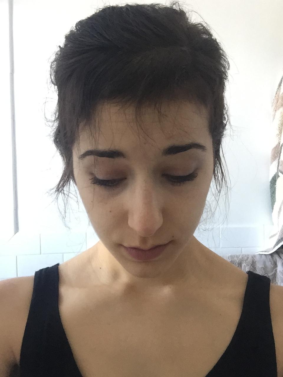 I miei capelli, 3 mesi dopo l'operazione