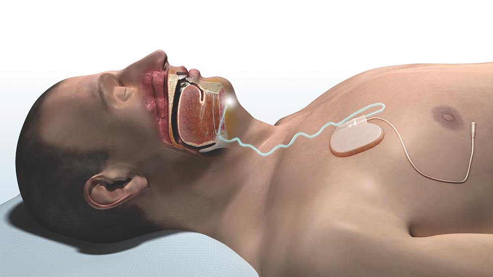 Sleep Apnea Implant