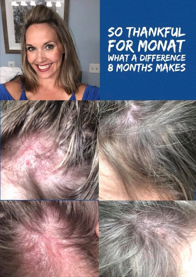 - My passion and story. I was diagnosed with a very rare autoimmune disease in October of 2017. The news was emotionally and physically devastating to me. I was going bald very fast with no hope of hair to ever grow back! I was shopping for wigs, and crying myself to sleep. I started a treatment regimen of scalp injections and oral medication, it was extremely expensive and painful. I decided to stop all treatments and exclusively use Monat. I couldn't be more blessed, thankful, and appreciative of Monat. It has given me hope again! I now can wear my hair pulled back and not live in embarrassment and have people staring at my bald spots, because there are no more bald areas! I choose to share my products with others to give women and men the opportunity to love their hair and have hope that it can grow back if they've experienced hair loss. This isn't just shampoo. It's life changing, friendship making, love and support of a Monat family. I am excited to share my before and after photos with you!