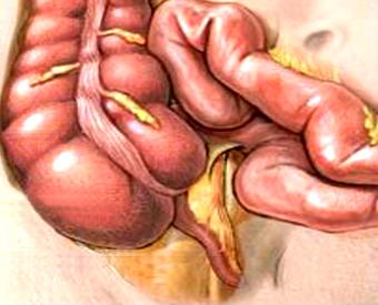 Cecum & Appendix