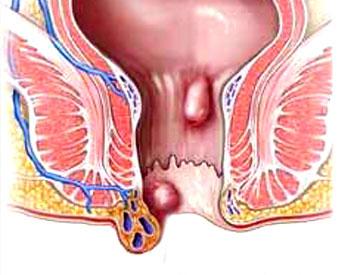 04_OSP_Haemorhoidectomy.jpg