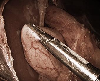Anti-Reflux-Surgery_003_WE.jpg