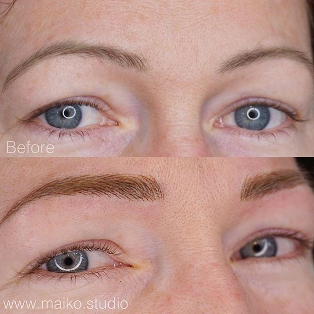 ▫️old blue grey tattoo GONE✔️✔️✔️ ▫️RESHAPING without making a drastic change✔️✔️✔️ ▫️Love this #transformation ✔️✔️✔️ #reshape #microbladedbrows #yvr