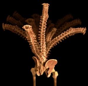 Spinal-Column-300x291.jpg