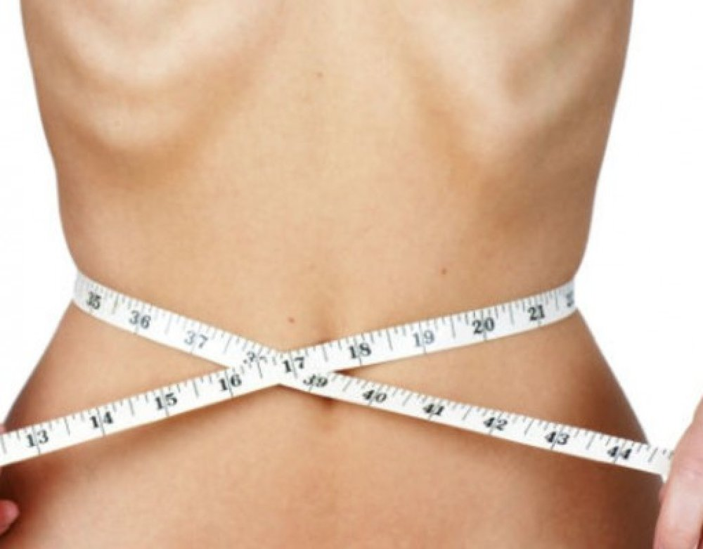 Anorexia -