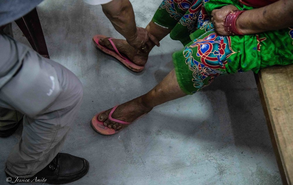 The lady being examined in this photo came into the camp exhibiting symptoms of heart failure. She had shortness of breath, extreme fatigueandweakness.She also had swelling(edema) of the  legs, ankles and feet and rapid and heartbeat. According to Dr. Suman at this point there was not a lot of treatment that would benefit her and unfortunately her prognosis was not very good.