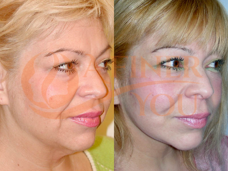 Facelift, upper and pinch lower blepharoplasty front and oblique view 1 year result
