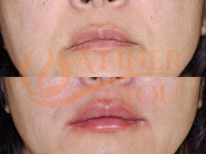 Lip filler right after injection