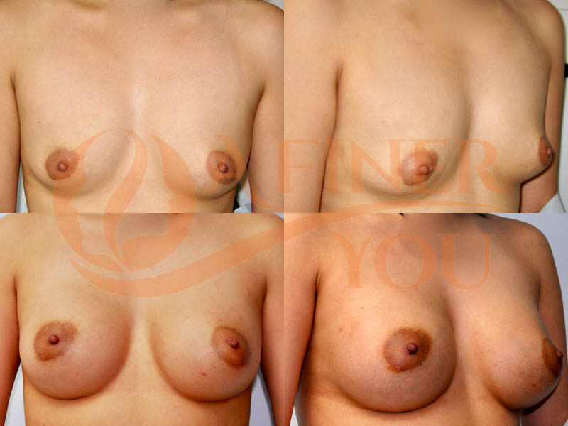 Breast augmentation with saline implants 8 month result