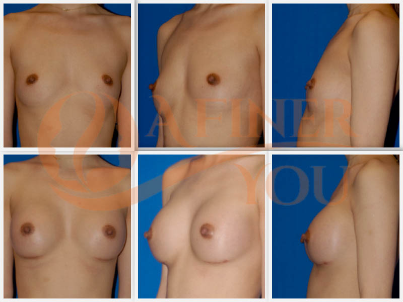 Breast augmentation with silicone implants 8 month result