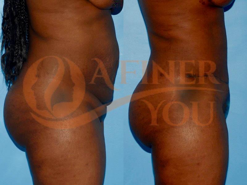 Abdominoplasty side view 3 month result