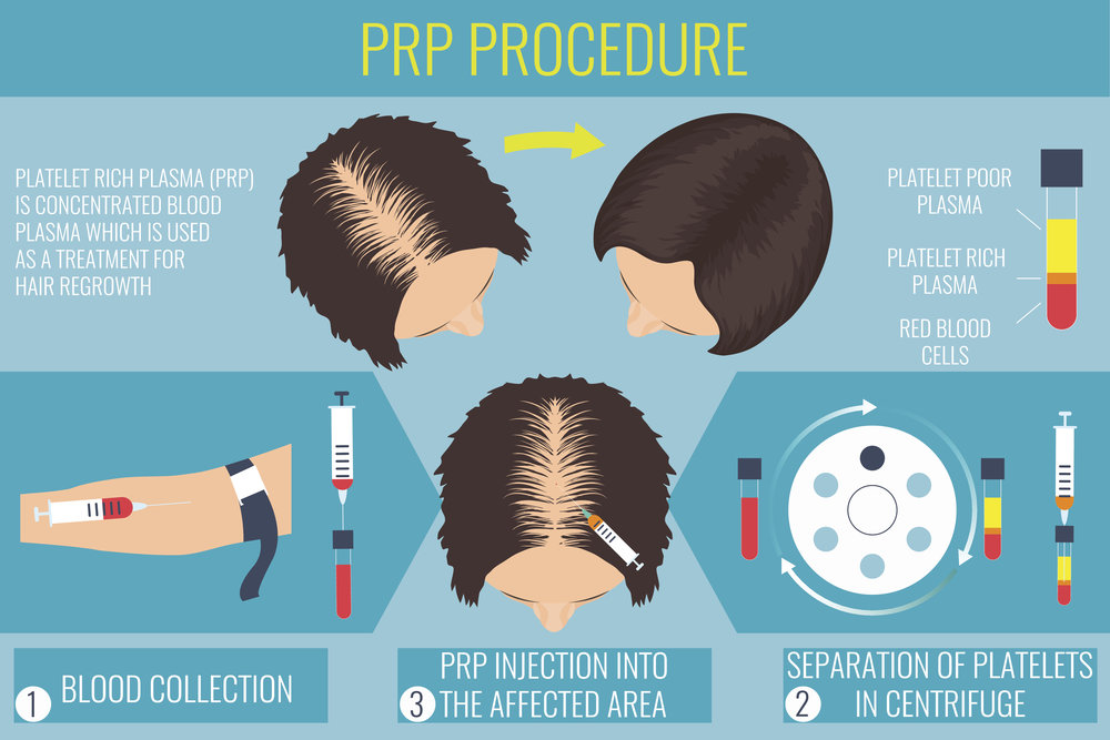 how-prp-hair-restoration-works.jpg