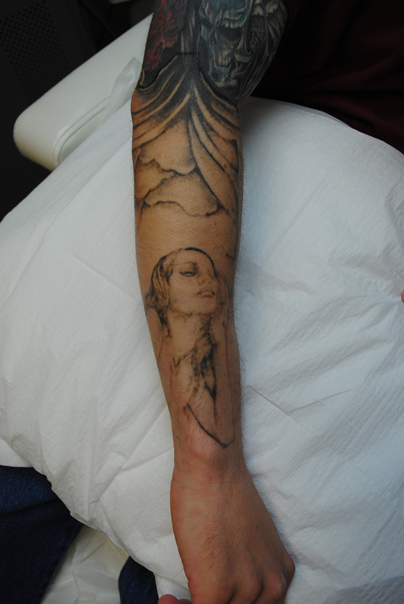 03-Tattoo-Removal-Oregon-Before.jpg