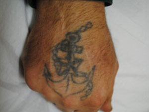 04-Tattoo-Removal-Oregon-Before.jpg