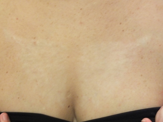 05b-Tattoo-Removal-Oregon-After.jpg