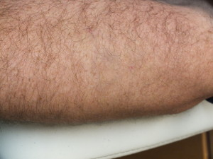 06b-Tattoo-Removal-Oregon-After.jpg