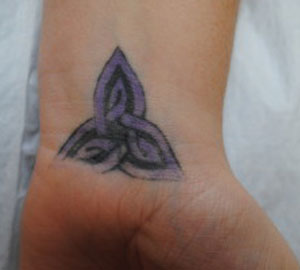 09-Tattoo-Removal-Oregon-Before.jpg