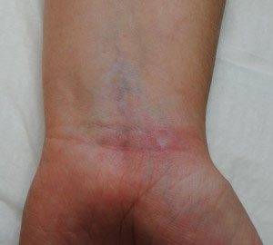 09b-Tattoo-Removal-Oregon-After.jpg