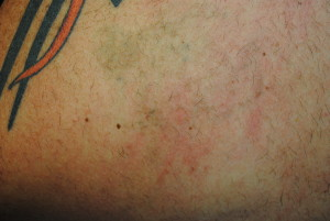 11b-Tattoo-Removal-Oregon-After.jpg