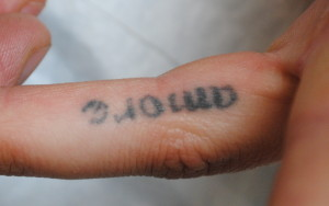 12-Tattoo-Removal-Oregon-Before.jpg