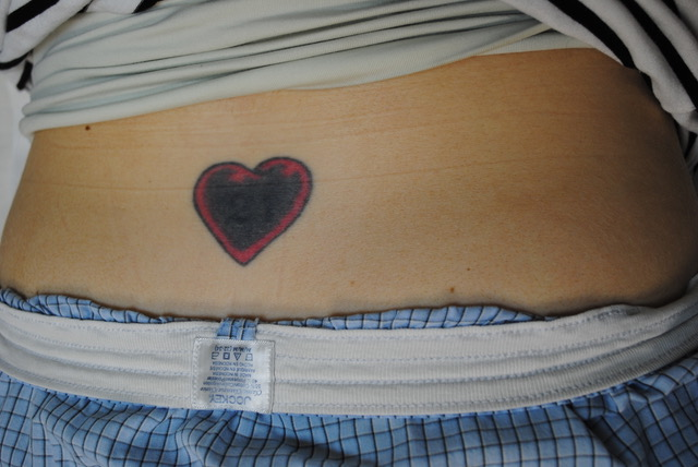 16-Tattoo-Removal-Oregon-Before.jpg