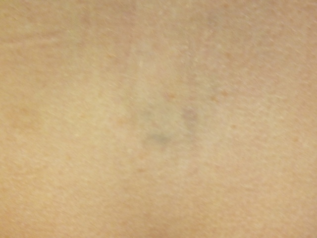 16b-Tattoo-Removal-Oregon-After.jpg
