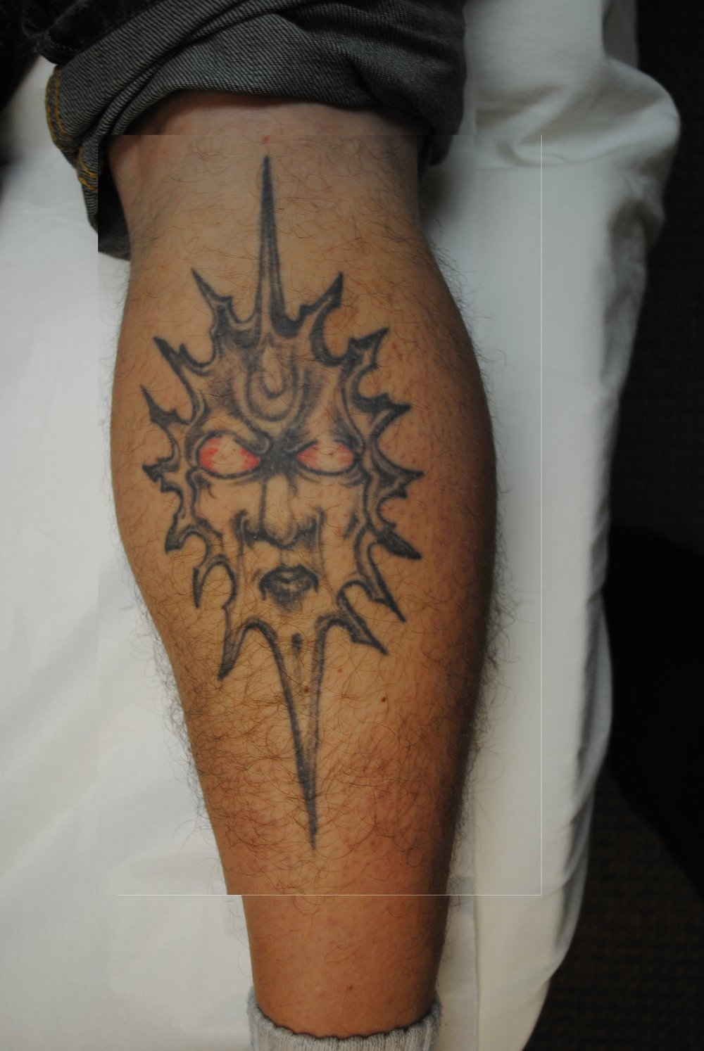 21-Tattoo-Removal-Oregon-Before.jpg