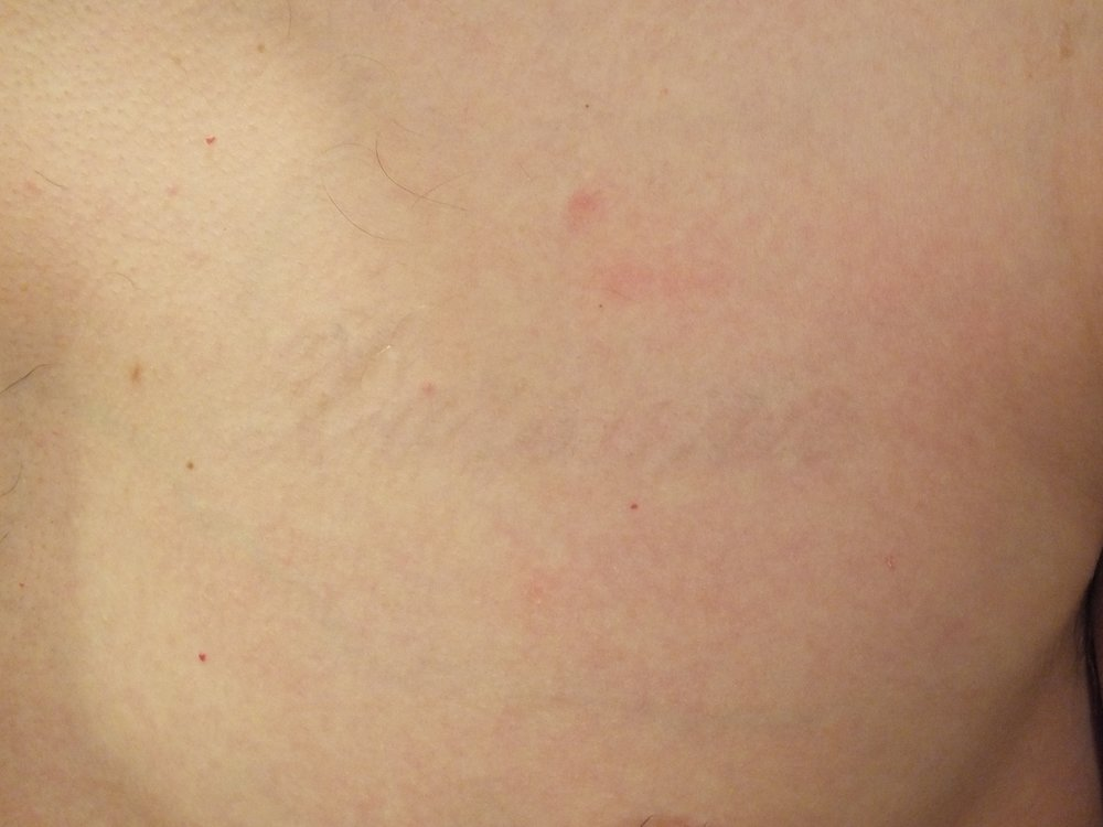 20b-Tattoo-Removal-Oregon-After.jpg