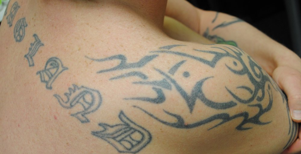 23-Tattoo-Removal-Oregon-Before.jpg