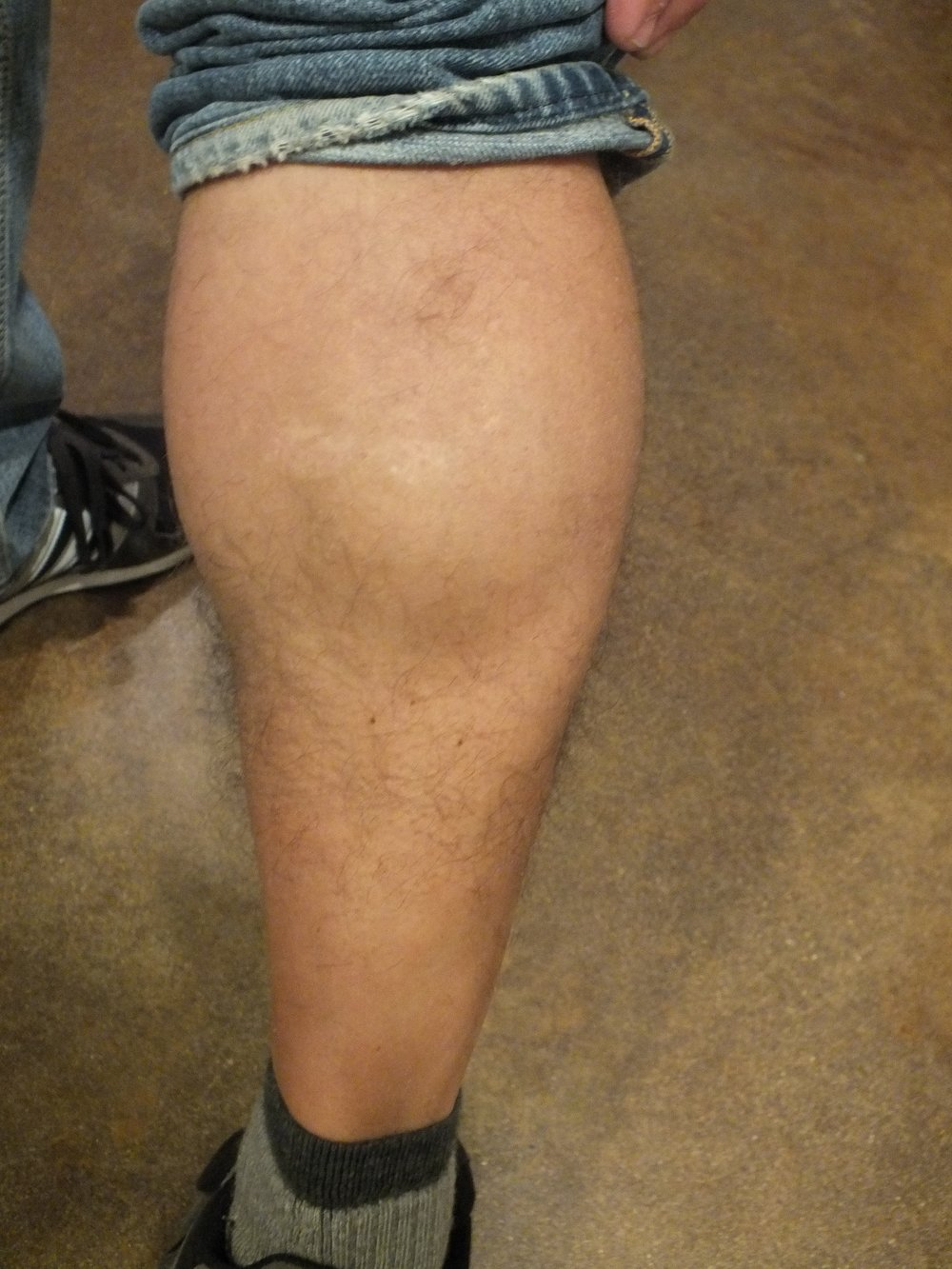 21b-Tattoo-Removal-Oregon-After.jpg