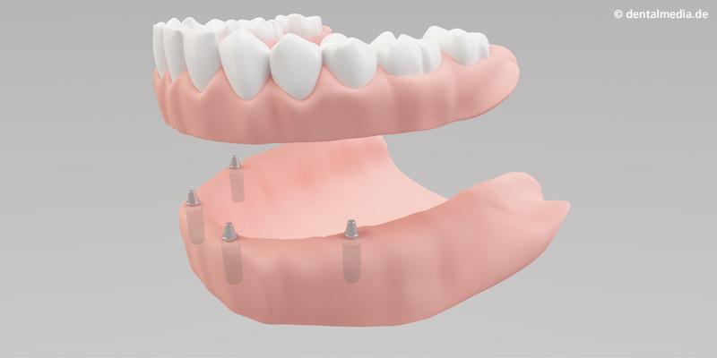 Sehr viele oder alle Zähne fehlen. Mit mehreren Implantaten haben Teil- oder Vollprothesen, herausnehmbar oder festsitzend, einen festen Halt.