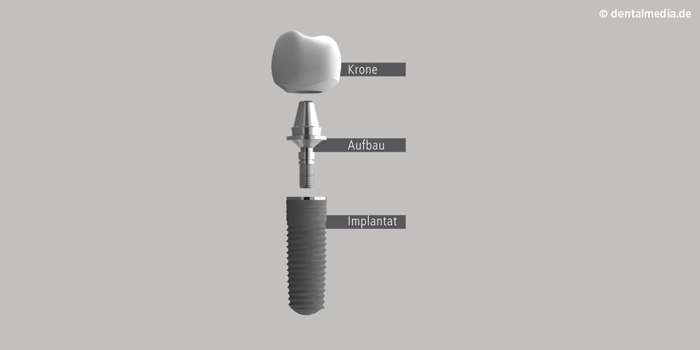 implantataufbau.png