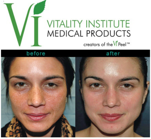 Chemical+Peel+Certification+Meridian.png