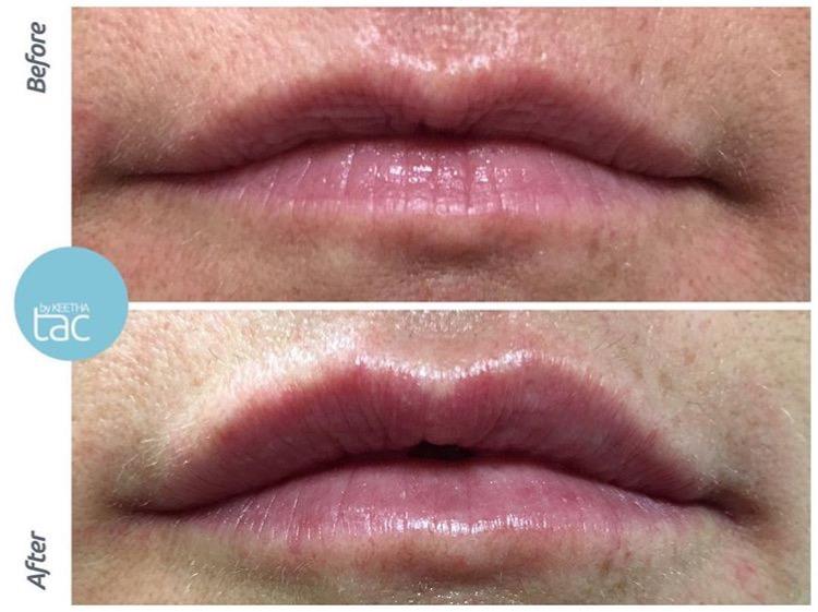 lips-by-keetha-upper-lip-definition.jpg