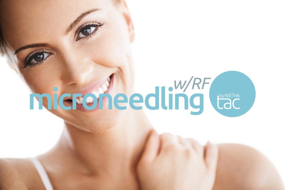 microneedling-rf-by-keetha-procedure-for-anti-aging.jpg