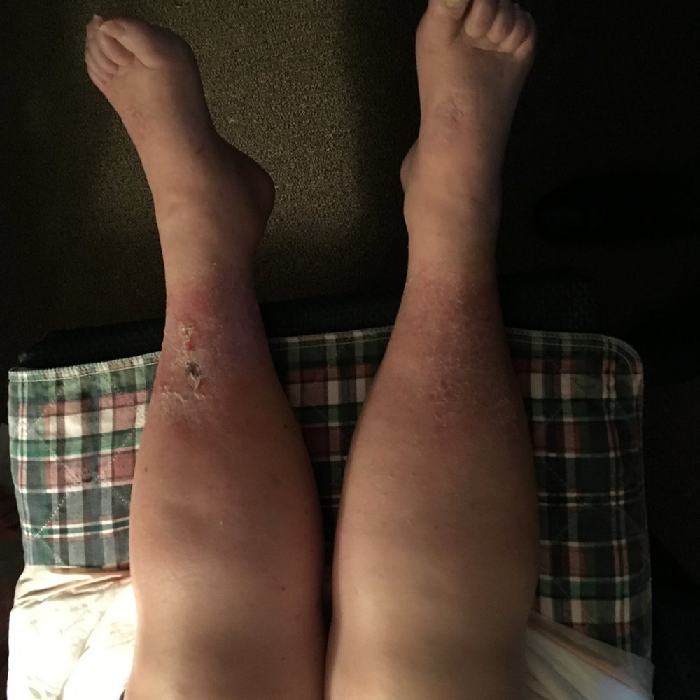 untreated swollen legs