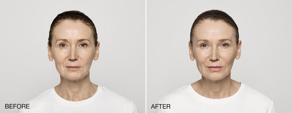 Restylane® Lyft  - Restylane® Lyft is approved by the FDA for cheek augmentationand the correction of age-related midface contour deficiencies inpatients over the age of 21. This is in addition to treatingmoderate to severe facial wrinkles and folds, such as nasolabial folds(smile lines).