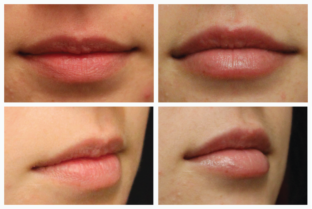 lips before and after no logo-01.png