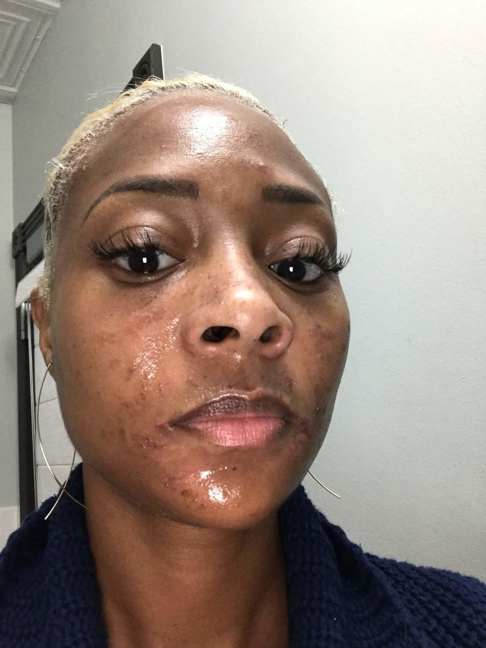 Day after Chemical Peel