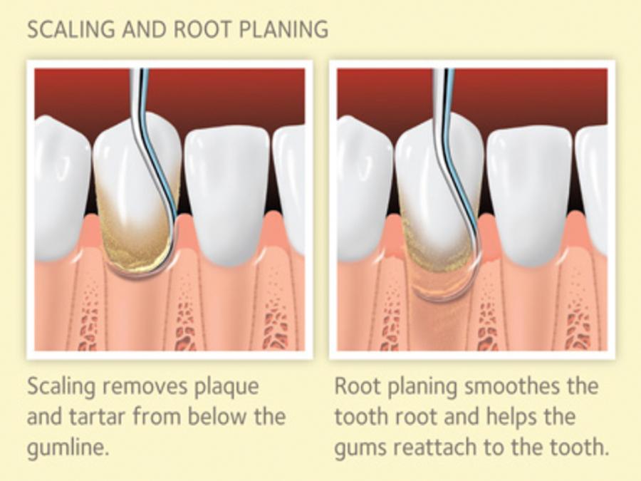 periodontal_01.jpg
