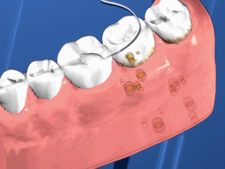 periodontal_02.jpg