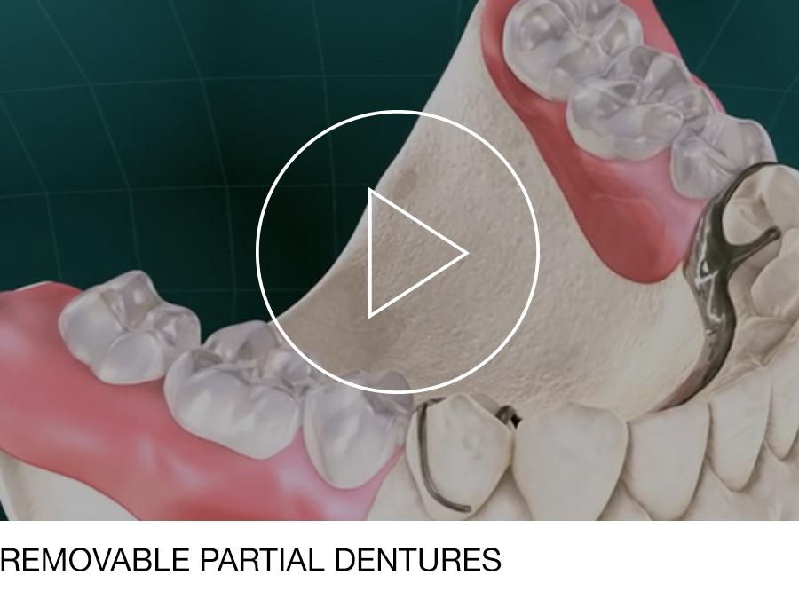 dentures_03.jpg