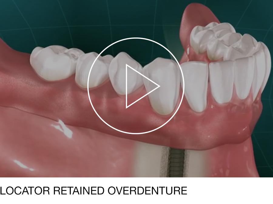 dentures_04.jpg