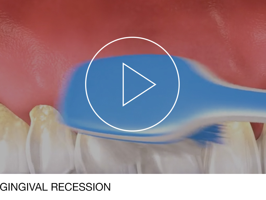 periodontal_05.jpg